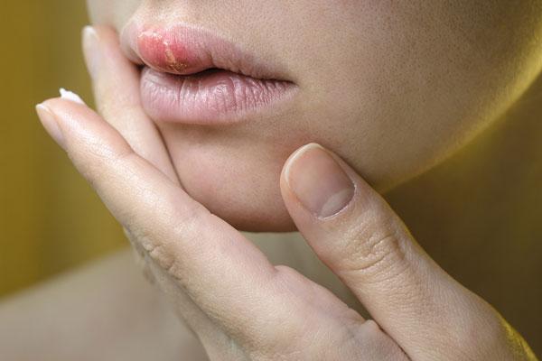 herpes liečba