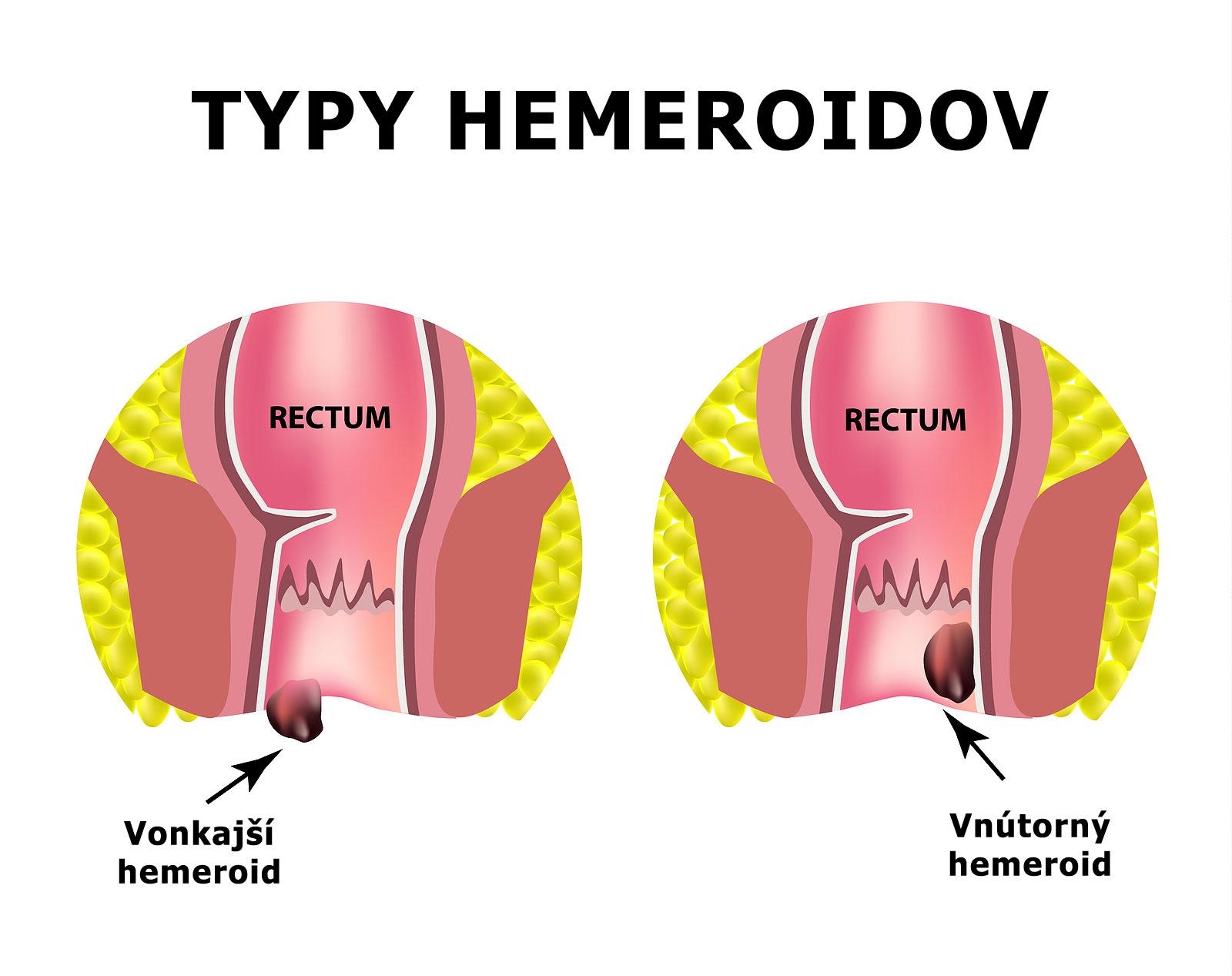 hemeroidy rozdelenie